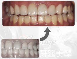 牙科案例.002