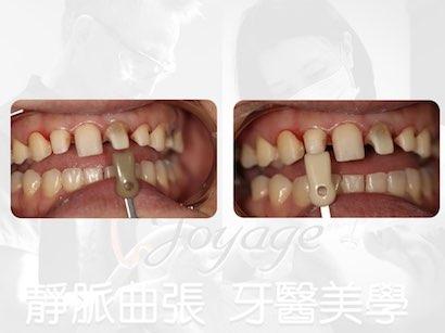 美學牙醫案例
