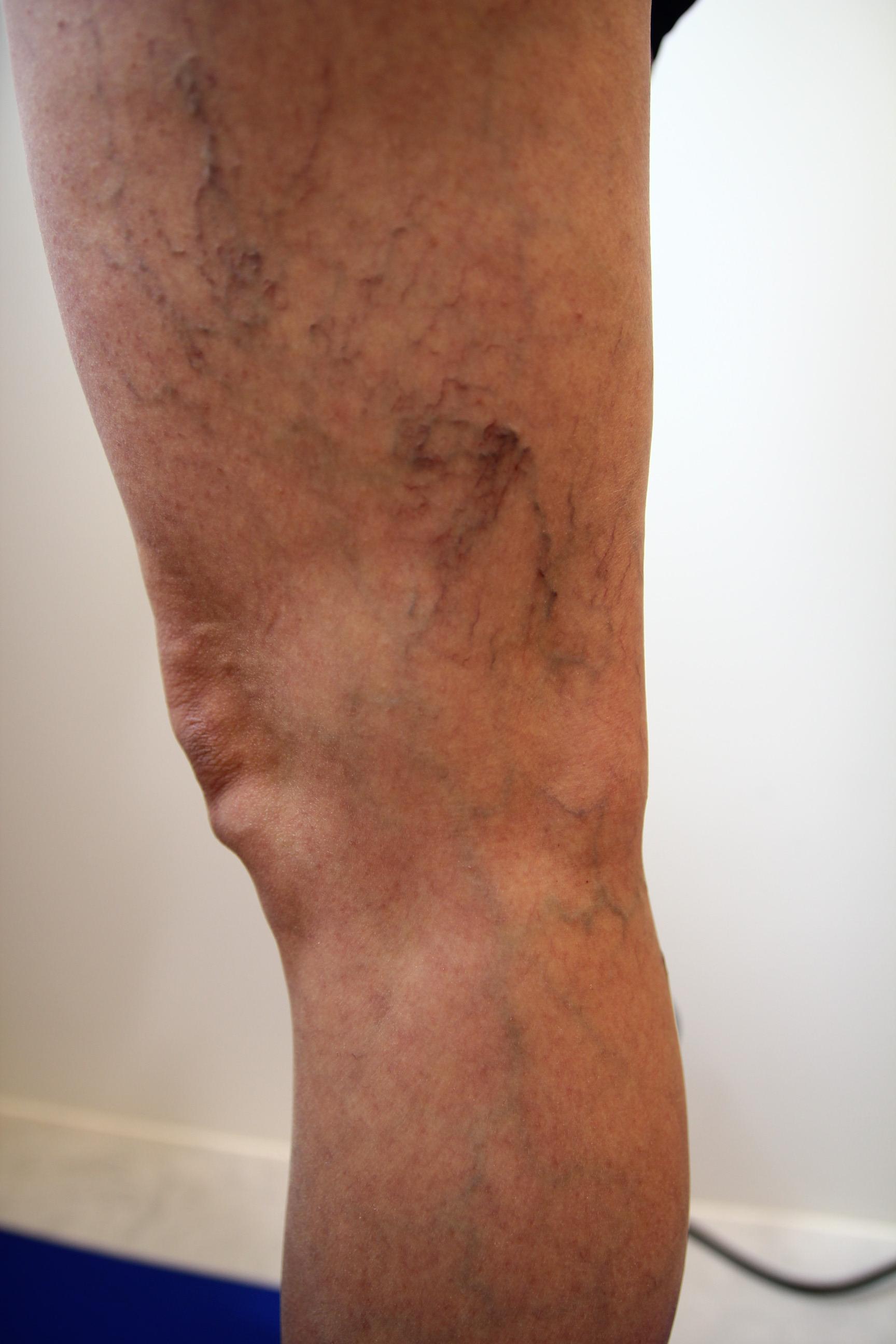 大腿外側靜脈曲張1