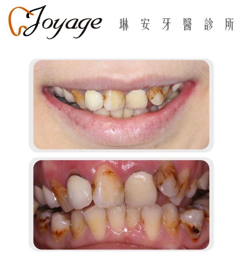 蛀牙體質案例