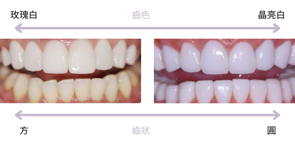 牙齒顏色與形狀